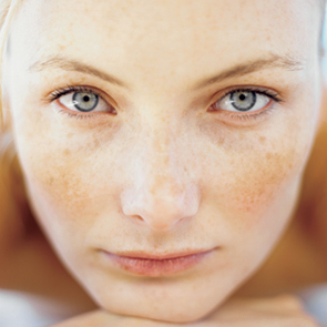 Freckles-Treatment-In-A-Natural-Way