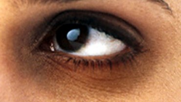 How To Deal With Dark Circles At Home For Summer 2012  001
