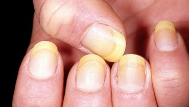 What Causes Yellowing Of Fingernails 001