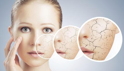 Beat Dry Skin