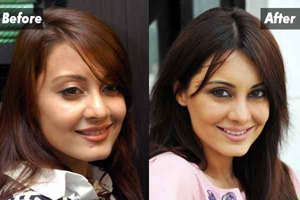 Which Bollywood Celebrities Opted Cosmetic Surgery001