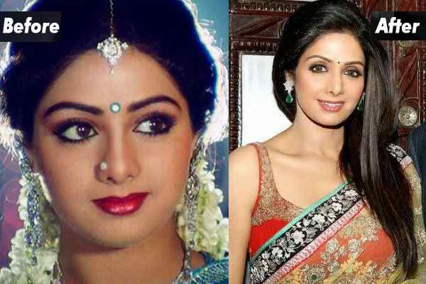 Which Bollywood Celebrities Opted Cosmetic Surgery004