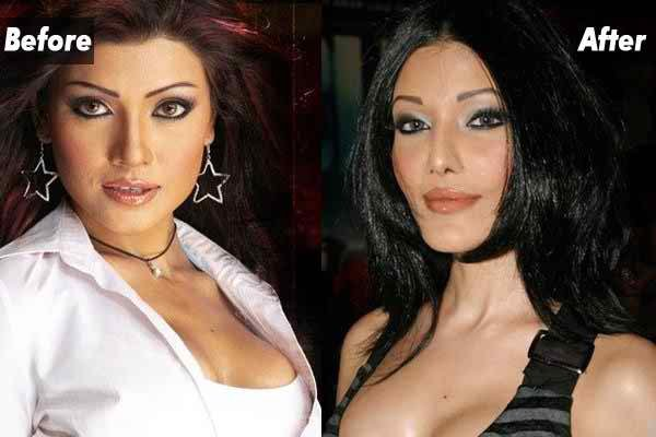 Which Bollywood Celebrities Opted Cosmetic Surgery005
