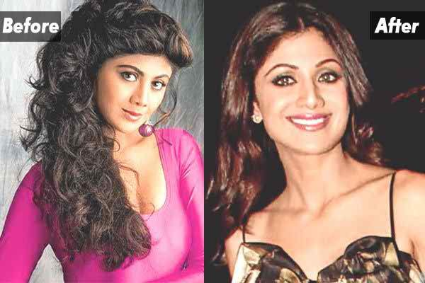 Which Bollywood Celebrities Opted Cosmetic Surgery007