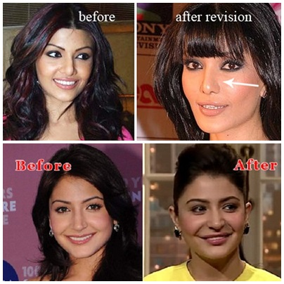 Which Bollywood Actresses Look Horrible After Their Plastic Surgery