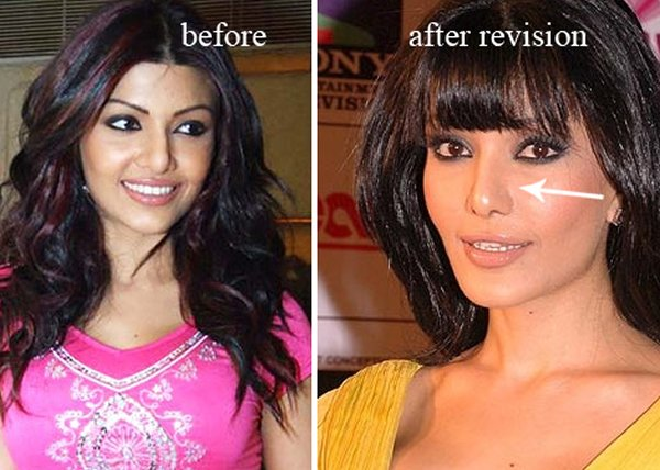 Which Bollywood Actresses Look Horrible After Their Plastic Surgery003