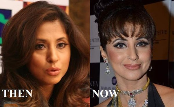 Which Bollywood Actresses Look Horrible After Their Plastic Surgery004