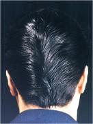 actor adnan jilani hair transplant