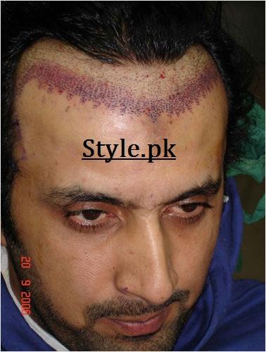 actor asad hair transplant