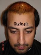 actor babar ali hair transplant