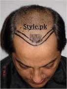 actor nabeel hair transplant