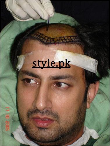 babar ali hair surgery