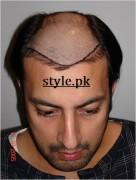 babar ali hair transplant