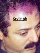 hair surgery of noman ijaz