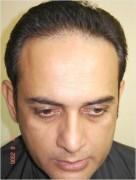 shahood alvi before hair transplant