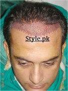 shahood alvi hair surgery