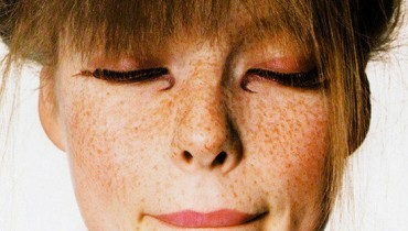Home-Made Tips For Freckles