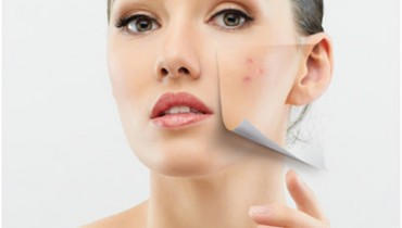 Different Ways To Prevent Acne
