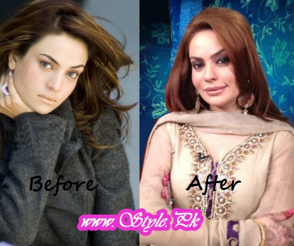 Beautiful Actresses Who Lost Their Beauty After Surgery pic 02