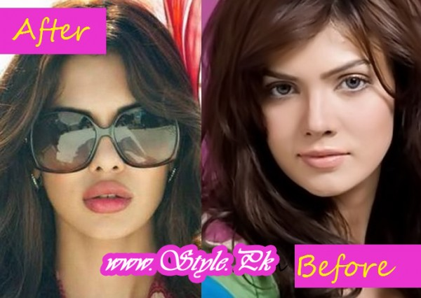 Beautiful Actresses Who Lost Their Beauty After Surgery pic 03