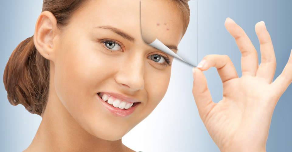 Effective Ways to Remove Acne Scars