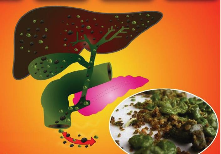 Natural Ways to Treat Liver Disorders