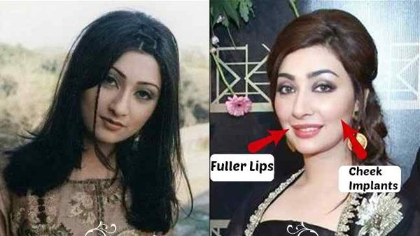 Which Pakistani Actresses Have Successful Plastic Surgeries 04