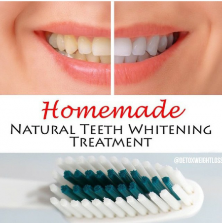 See natural treatment for teeth whitening