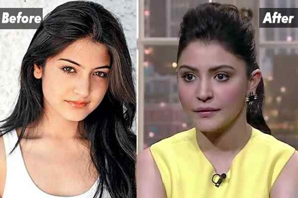 Which Bollywood Celebrities Opted Cosmetic Surgery0010