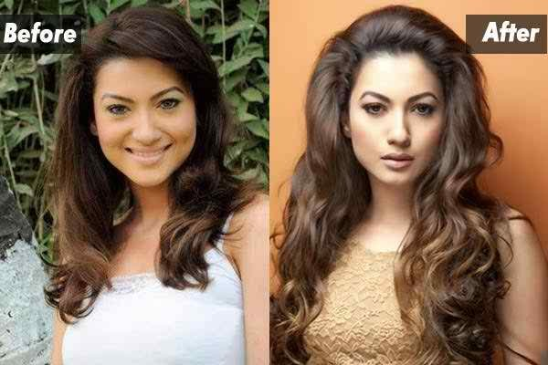 Which Bollywood Celebrities Opted Cosmetic Surgery003