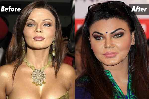 Which Bollywood Celebrities Opted Cosmetic Surgery006