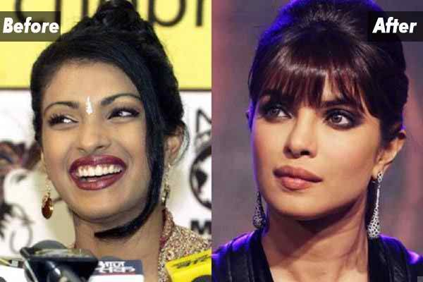 Which Bollywood Celebrities Opted Cosmetic Surgery008