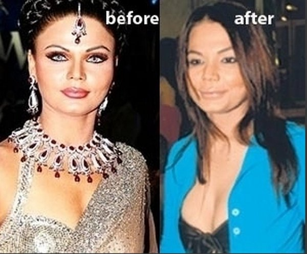 Which Bollywood Actresses Look Horrible After Their Plastic Surgery002