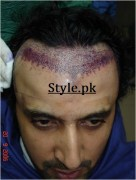actor asad hair surgery pics
