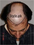babar ali hair transplant pics