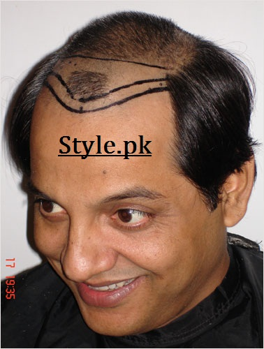 bulbulay nabeel hair transplant