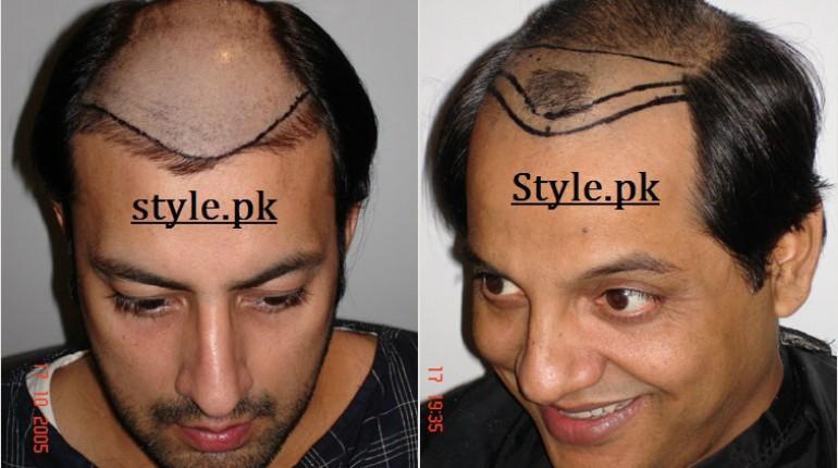 celebrities who underwent hair transplant