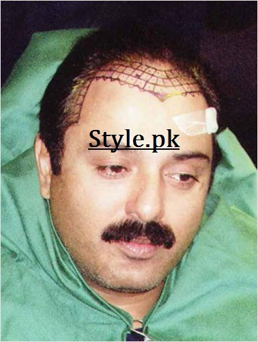 noman ijaz hair transplant - Pakistani Celebrities With Hair Transplant