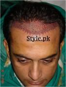 shahood alvi hair transplant