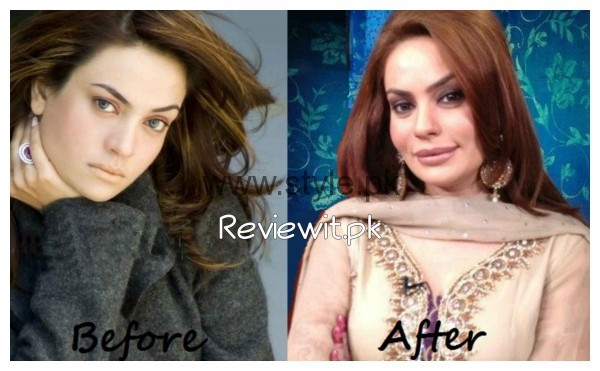 Sadia Imam Lip Surgery