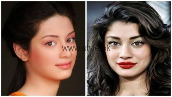 Sidra Batool Lip Surgery