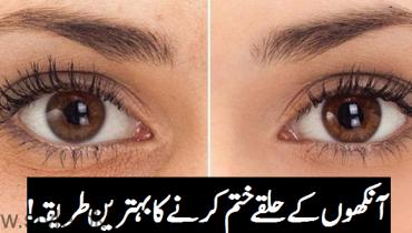 Dark Eye Circles Remedy By Dr Bilquis