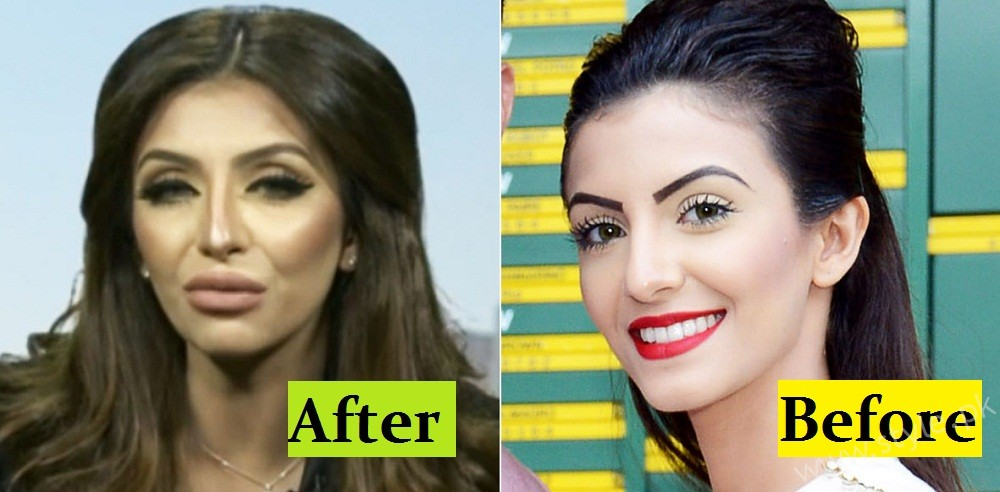 Faryal Makhdoom's Plastic Surgery Gone Wrong!