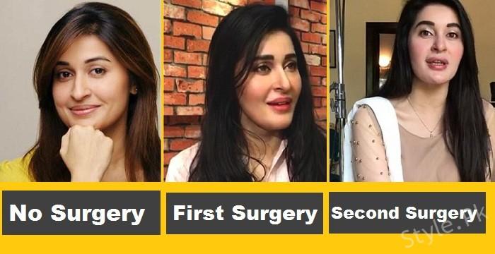 Shaista Lodhi After 1st Surgery Amp 2nd Surgery Style Pk